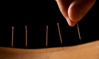 dallas-acupuncture-removing-needles