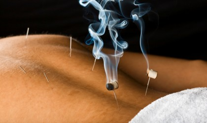 dallas-acupuncture-treatment